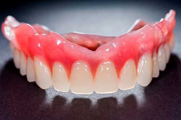 Tooth Extraction Archives Dental Resorts